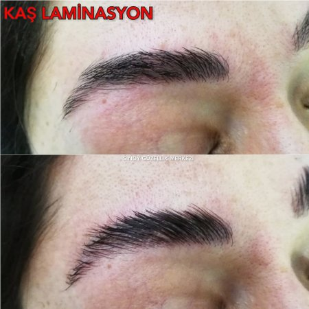 TRABZON'DA KAŞ LAMİNASYON